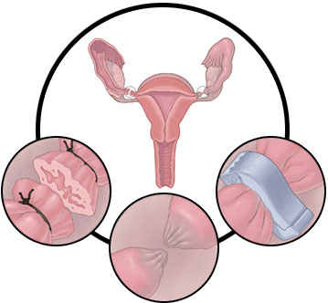 circles_tubal_ligation